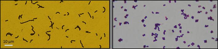 Lactobacillus, Pediococcus